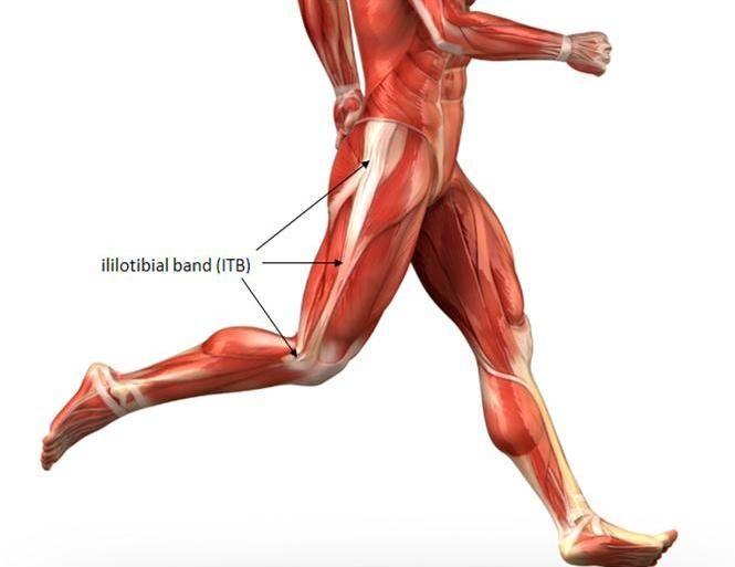 El síndrome de la cintilla iliotibial supone el 12% del total de lesiones de los corredores, provocando dolor en la cara lateral de la rodilla.