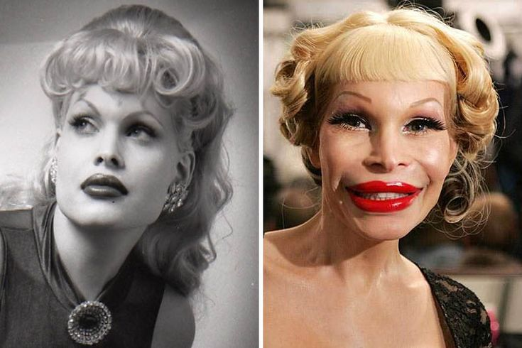 #Botched #fails #plastic #surgery #Top         amanda lepore botched plastic sur…