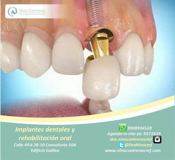 Vuelve a Sonreír! Que la ausencia de dientes no limite tu vida, los implantes dentales la solución más eficaz para recuperar tu sonrisa natural. Excelentes planes y descuentos. Agenda tu cita ya: 6571629 - WhatsApp: 3008934528 http://ninacontrerascmf.com/location/