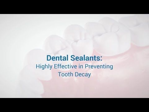 Dental Sealants: Highly Effective in Preventing Tooth Decay www.q1dental.com.au