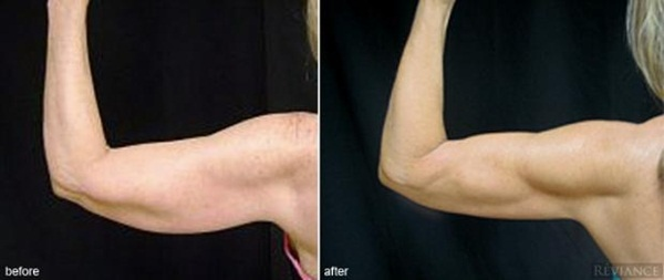 Arms Liposuction Before and After Photos