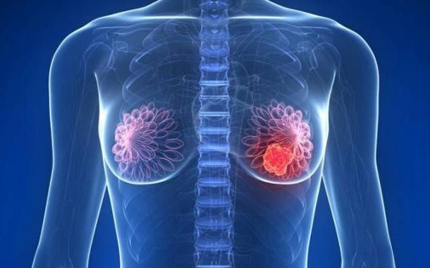 Identifican gen relacionado a resistencia de tratamientos de cáncer de mama