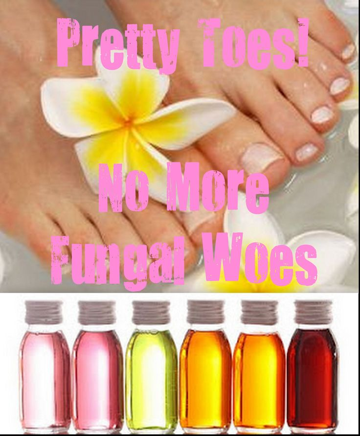 Pretty Toes ~ No More Fungal Woes!