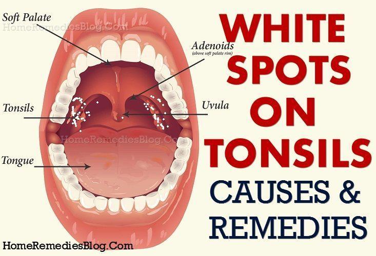 Pin on Tonsil Stones Remedies