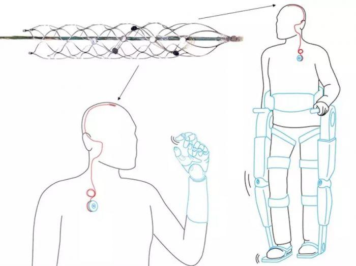 University of Melbourne brain implant