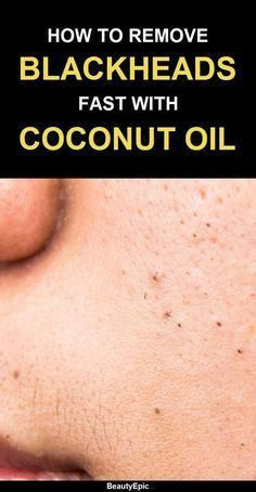 How to use coconut oil to remove blackheads #Cocon…