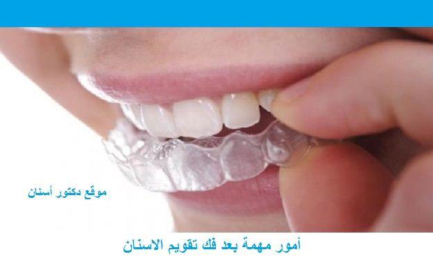 أمور مهمة بعد فك تقويم الاسنان Live Lokai Bracelet Lokai Bracelet Blog Posts