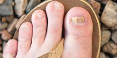 Nail fungus be it on your fingernails or toenails is truly difficult to deal w