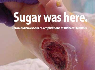 diabetic foot ulcers in depth analysis The aim of this study was to evaluate the characteristics of diabetic foot ulcers in a diabetic foot ulcers in western sydney, australia ulcer grade/depth.