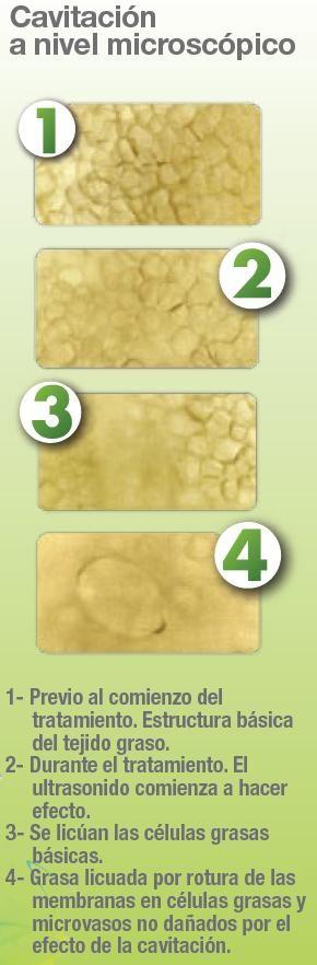 Ultracavitación MEDYSPA (NUTRICION, MEDICINA Y CIRUGIA COSMETICA)