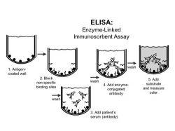 Understanding the ELISA TEST and Western Blot Lyme test