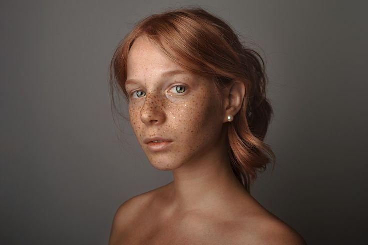 Golden Freckles - The project Defected wants to enhance the current new aesthetic imperfection, in opposition to the ideology of mass production and conformity. Gold, color of the sacred and preciousness in human iconography, wants to highlight the uniqueness of the individual who, by choice or by birth, is different from the classical canons. A project that wants to break the circle of perfection and give voice to a new vision of beauty.  More on: http://www.instagram.com/cirogalluccio