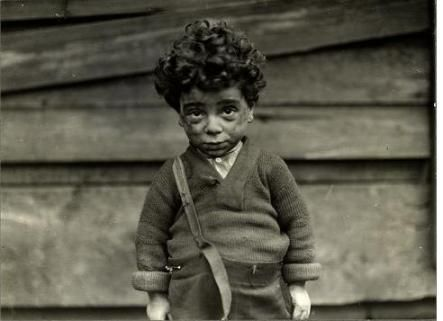 Under Privileged Hull House, 1910 by Lewis Hine.  I had this photo on my wall at work when I worked with a foster child placement agency.  This little guy did something to my heart.