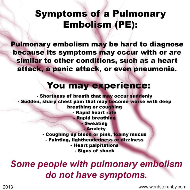 58 best pulmonary embolism/ blood clots images on pinterest, Skeleton