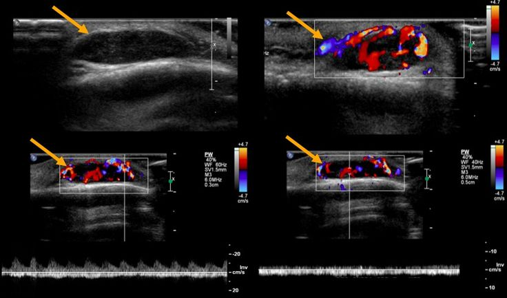hemangioma Sonographic findings: a solid, well demarcated, hypoechoic subcutaneous nodule, measuring 1.7 x 1.5 x 0.5 cm without bone lesion, hypervascular at color Doppler presenting arterial and venous flows.