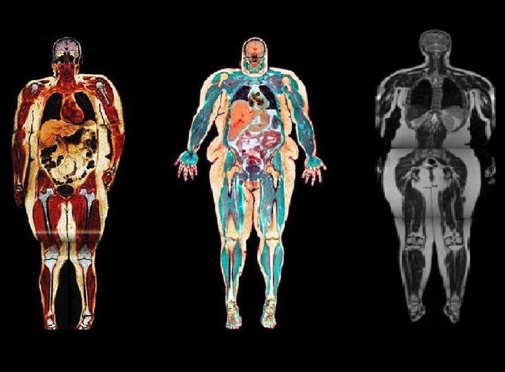 Вы будете удивлены! Связь ожирения и неорганизованного жилища