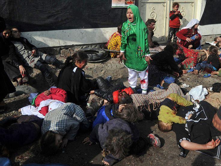 Pulitzer 2012 - Categoría: Fotografía de noticias de última hora (Breaking News Photography). Para Massoud Hossaini de AFP. Tarana Akbari, de 12 años, grita aterrada después de que un atacante suicida detonara una bomba en el Santuario Abul Fazel, Kabul, Afganistán. Su hermano Shoaib, de 7 años, falleció. http://www.pulitzer.org/works/2012-Breaking-News-Photography