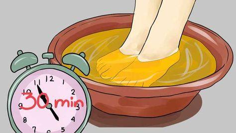 En un recipiente de plástico colocaremos el agua con dos tazas de vinagre de manzana. Mezclar todo muy bien y sumergir por unos 20 minutos los dos pies.  Pasado el tiempo, vamos a secar muy bien ambos pies para evitar que queden húmedos dejando actuar por toda la noche.  En una semana verás cómo puedes resolver los problemas en los pies como: hongos, resequedad, mal olor, sudor excesivo, pie de atleta