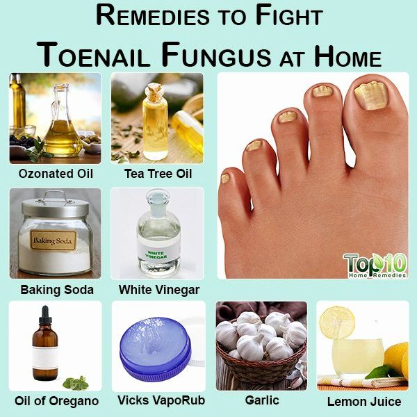Hydrogen Peroxide For Nail Fungus Lovely How To White Toenails Mix A Small Amount Of B In 2020 Toenail Fungus Home Remedies Toenail Fungus Remedies Toe Fungus Remedies
