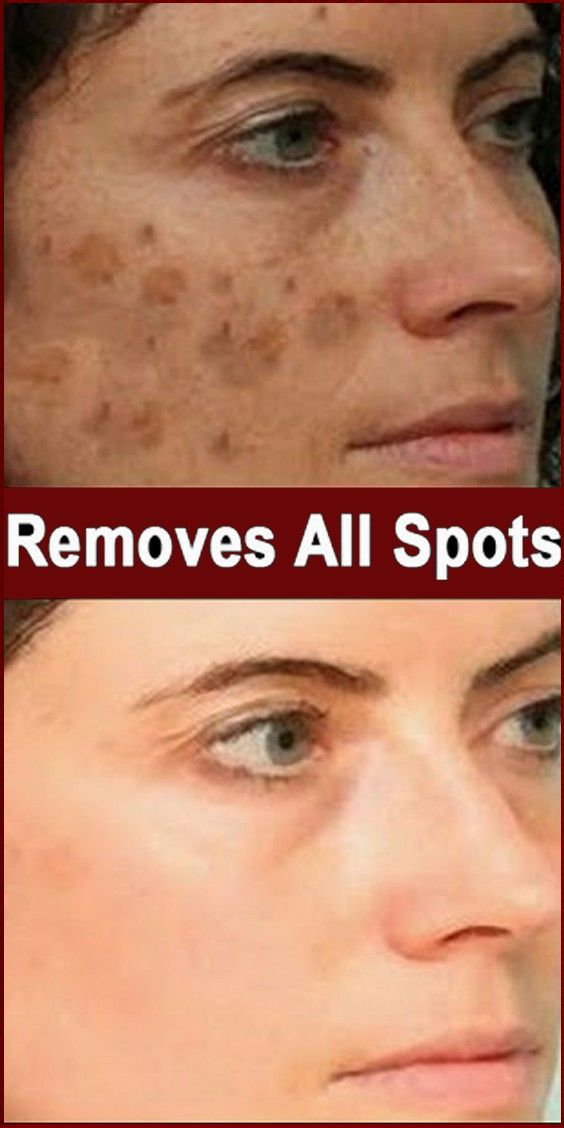 Skin Care : Home Remedies For Dark Spots – Skin …