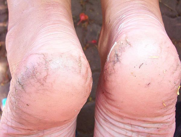 What Causes Cracked Heels?