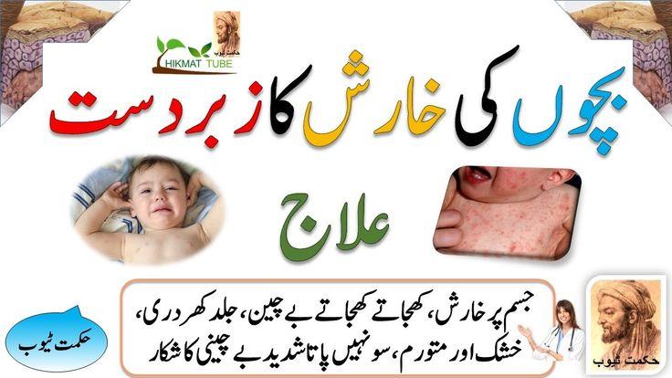 scabies in kids/kharish ka ilaj/alerji ka ilaj in urdu/hindi/kharish ka rohani ilaj/children disease/bachon ka ilaj/child/children/kids/baby care/tips