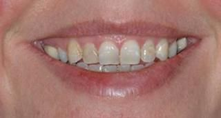 Before Picture: This patient had poorly adapted fillings and discoloured teeth due to coffee and Tetracycline (antibiotic) staining. She asked us to improve them while keeping them looking as natural as possible. We restored them with 8 ultra thin porcelain veneers, giving her a natural, elegant look.