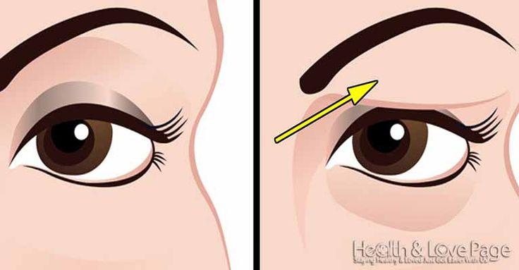 Ταπεσμένα βλέφαρα μπορεί να είναι πραγματικά ενοχλητικά και μπορεί να κάνουν ένα πρόσωπο να φαίνεται πολύ μεγαλύτερο. Σε γενικές γραμμές, τα πεσμένα βλέφαρα είναι αποτέλεσμα της φυσικής διαδικασίας της γήρανσης, αλλά μπορεί επίσης να προκληθούν από