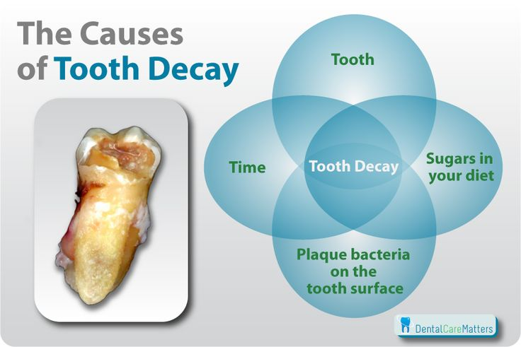Tooth decay causes.  If you suffering from tooth pain and our in the Phoenix valley we can help - www.drsperbeck.com