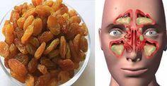 Zencefil üzüm ile sinüzit tedavisi nasıl yapılır? sinüzit nasıl geçer