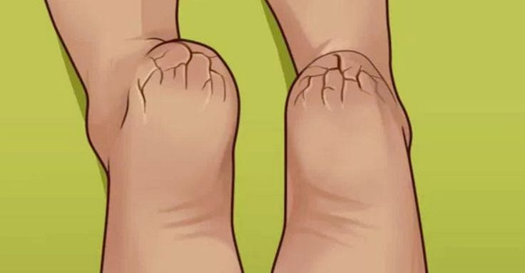 NICIODATA nu va mai faceti griji privind calcaiele uscate, crapate si mancarimile cu acest TRUC esential!    Si tu suferi de calcaie uscate, crapate si mancarimi? Pielea de pe talpa este rosie, intarita si se ridica? Poti