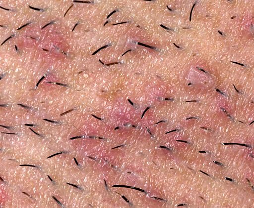 Removing Ingrown Hairs and Blackheads anywhere on the body and bikini line!