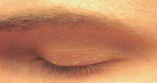 Les grains de milium sont des boutons blancs de petites tailles qui apparaissent sur la surface de la peau. Ces grains ne constituent pas de dangers pour la san