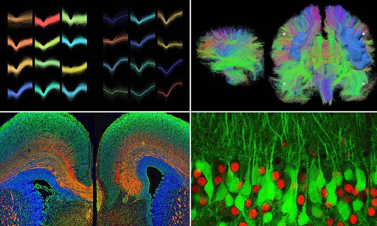 Kaleidoscopic images reveal the inner workings of the human brain: The pictures are created from MRI scans, microscopic images and electrical monitoring, and are part of an exhibition called The Brain Is Wider Than The Sky.