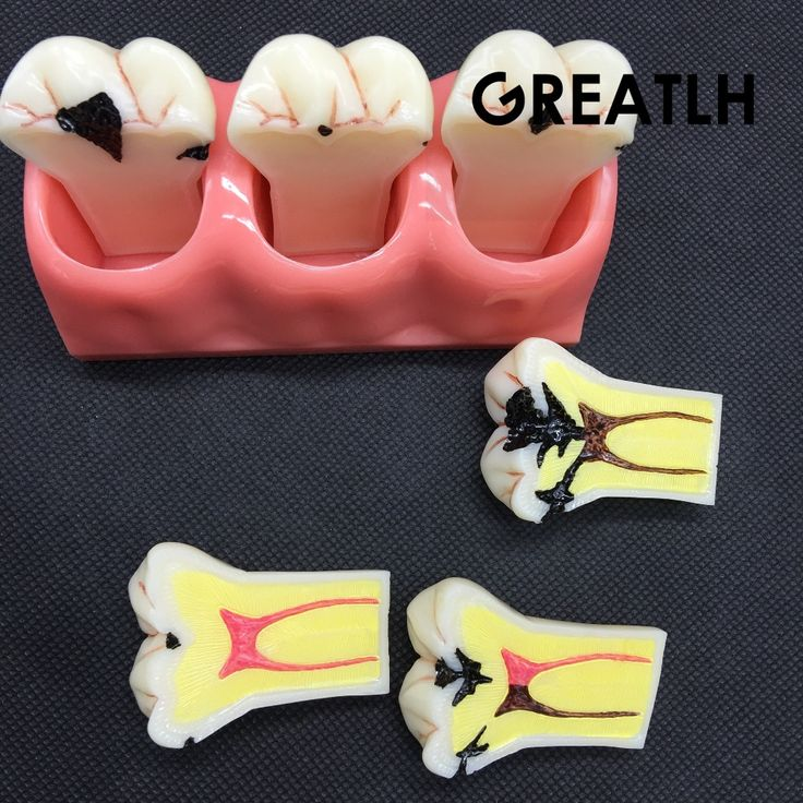 32.65$  Buy now - http://aliuam.shopchina.info/go.php?t=32306607854 - 4:1 Size Dentistry dental caries decomposition model oral pathology dental caries model doctor - patient communication demonstra 32.65$ #buymethat