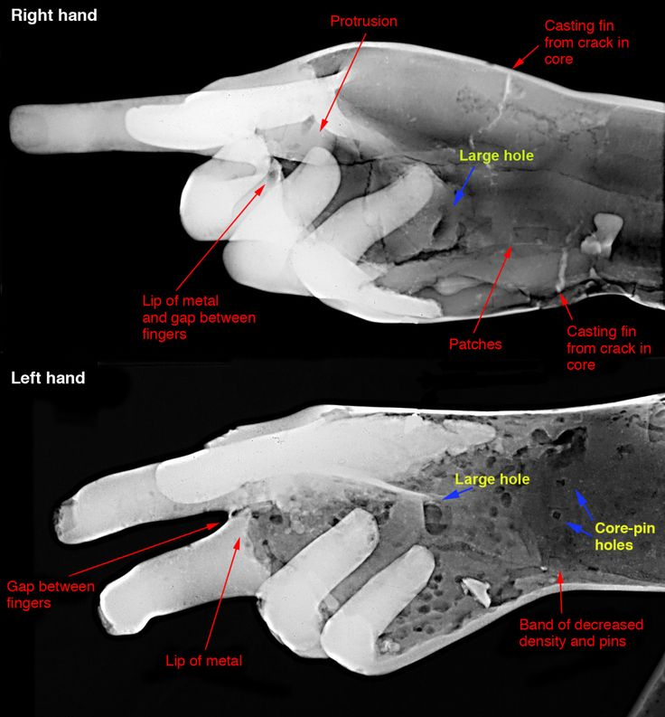 The J. Paul Getty Museum • The Restoration of Ancient Bronzes: Naples and Beyond: Radiographs of right and left hands. The radiographs have been enhanced with Lucis Pro 6.0 software.