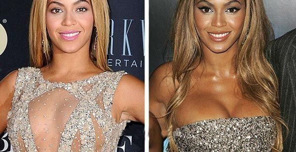 Beyonce Knowles Plastic Surgery - Before and After Breast Implants