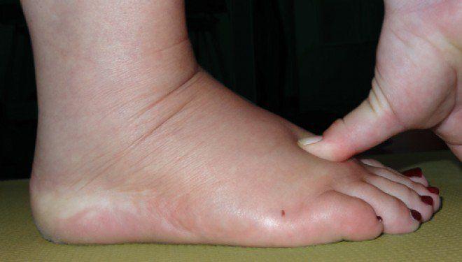 Existen muchas causas para las piernas y pies hinchados, desdemala circulación de la sangre, ciclo menstrual, exceso de peso corporal hasta dieta poco