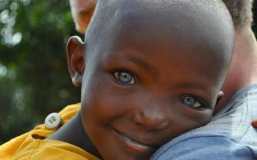 » Black People with Blue Eyes: Natural Phenomenon or Genetic Mutation?