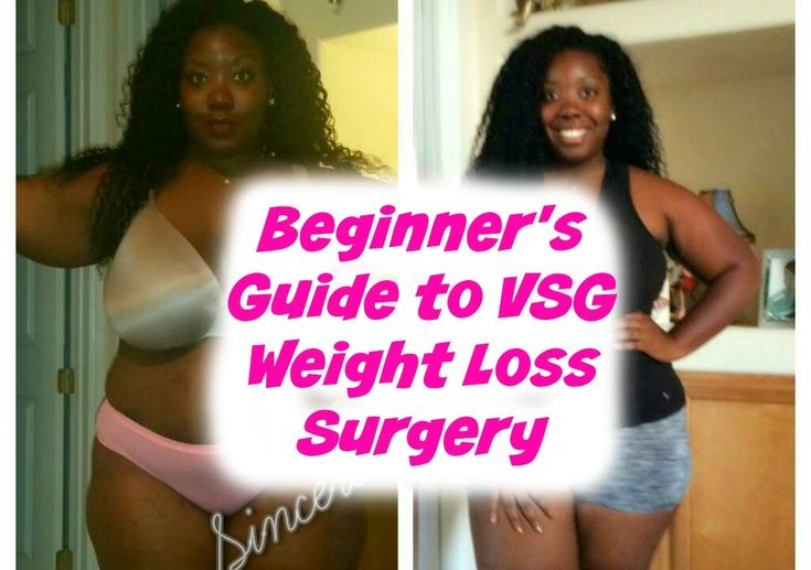 Beginner's Guide to Vertical Sleeve Gastrectomy (VSG)❤