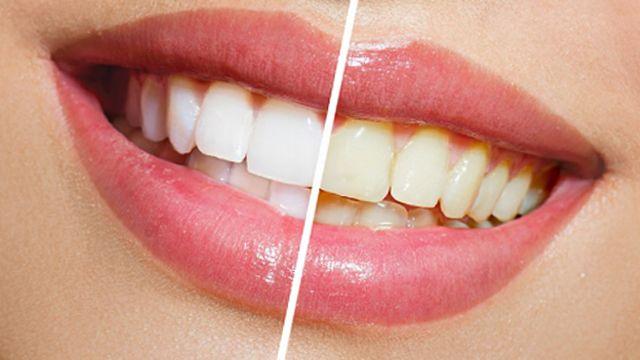 17 Best Ideas About Best Teeth Whitening On Pinterest