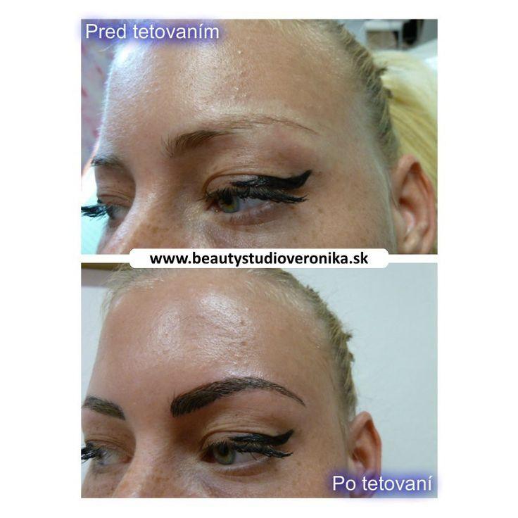 Na fotografii je vidieť čerstvo natetovaný permanentný make-up, čoho výsledkom je intenzívnejšia farba tetovaného miesta. Po vyhojení pokožky, ktoré trvá 7-10 dní, bude výsledný efekt o 2-3 odtiene svetlejší a tým aj prirodzenejší. Preto sa netreba obávať tmavšej a výraznejšej farby  ihneď po tetovaní.  Bolestivosti z procedúry tetovania sa neobávajte, pretože používam vysokokvalitné a vysokoúčinné lokálne anestetiká v podobe gélu a krému. Týmto zabezpečím úplne bezbolestné tetovanie PMU.