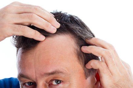 La calvizie è una malattia dei capelli molto comune, la cui incidenza aumenta con l'età, arrivando a costituire la malattia che è più frequente nelle donne. Il nome deriva dal fatto che le cause sono legate agli ormoni androgeni e ad una...