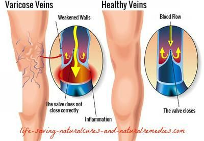 Top 8 Natural Remedies for Varicose Veins and Spider Veins... Want to get rid of those unsightly looking varicose veins and spider veins in a hurry and for good? Here's 8 of the best natural cures and home remedies you definitely should consider...