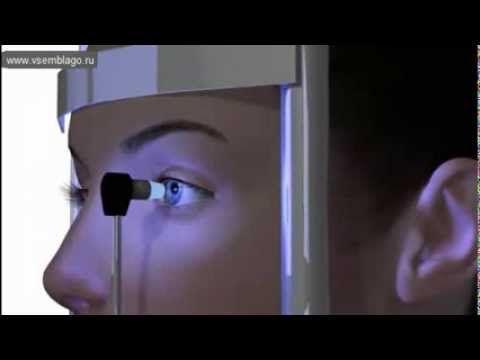 Первичная Глаукома открытоугольная. Развитие глаукомы - факторы и сущест...