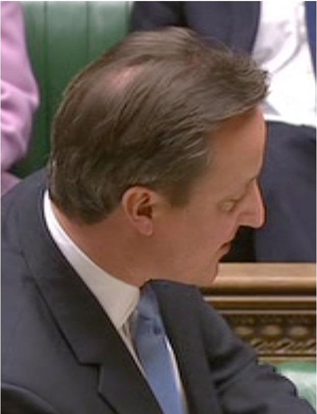 David Cameron's Balding Worsens With Visible Bald Patch - Prime minister David Cameron was sporting a rather interesting hair style in the Commons yesterday, as he appeared to try Article by cliffjack (c) Bald Truth Talk - Hair Loss, Hair Transplant and Hair Restoration Community  - Read full story here. - http://www.belgraviacentre.com/blog/david-camerons-balding-worsens-with-visible-bald-patch/ - http://hairlosssolution.biz