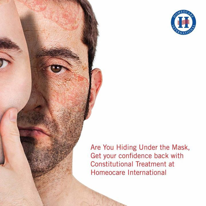Skin is rapidly changed it's colour to white patches and it makes embarrassing this type of skin disorders are named as Psoriasis.  Homeopathy for psoriasis is effectively cured and makes skin to normal level. Homeocare International provides Psoriasis Treatment in Homeopathy without effecting any side problems.