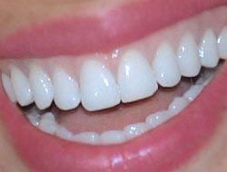 Anında Işıl Işıl Ve Bembeyaz Dişler İçin Sigara Külü Ve Limon