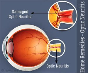 Home Remedies for Optic Neuritis there are none I live with this every day of my life