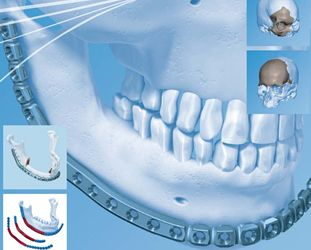 CIRUGÍA MAXILOFACIAL Tratamos heridas faciales, ofreciéndole cirugía reconstructiva e injertos, así como el cuidado y tratamiento dedicado a pacientes que padecen de tumores y quistes de los maxilares.